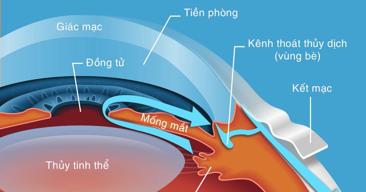 Nguyên nhân gây bệnh glaucoma là gì? Ứ trệ thủy dịch là nguyên nhân chính